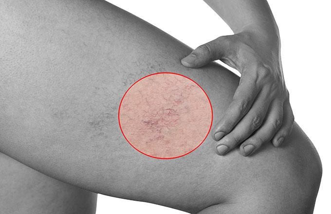 spider veins varicose veins