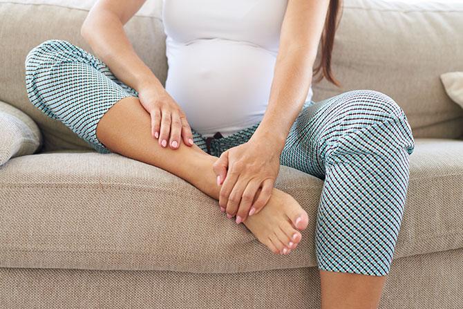 varicose veins pregnancy