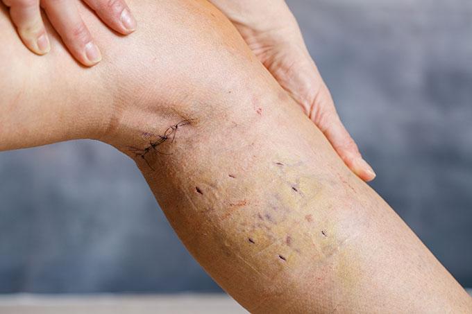 Varicose vein stripping adalah prosedur bedah untuk mengangkat varises dari kaki atau paha.