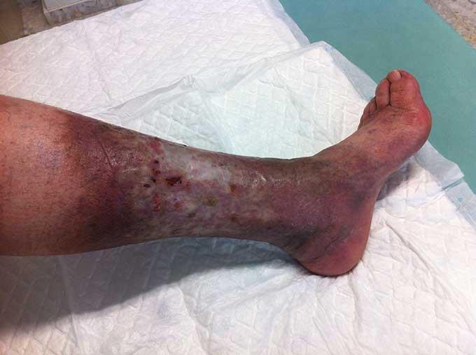 venous leg ulcer nelson