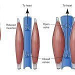 post vein treatment tips in lockdown