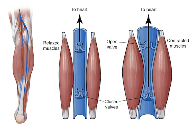 post vein treatment tips