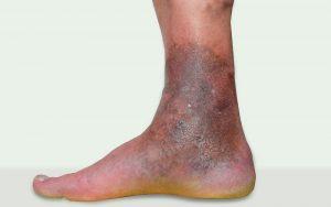 Varicose eczema and varicose veins